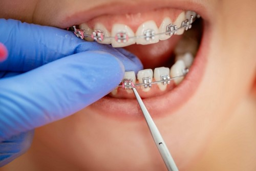 tái khám niềng răng