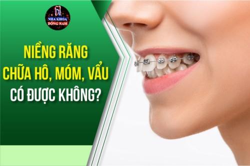 niềng răng chữa hô, móm, vẫu có được không