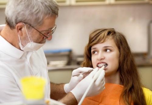 niềng răng có cần nhổ răng không 2