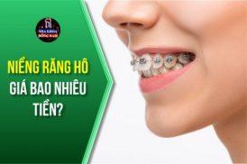 niềng răng hô giá bao nhiêu tiền