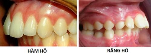 niềng răng hô như thế nào 3