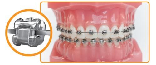 Niềng răng mắc cài kim loại tự buộc là gì?