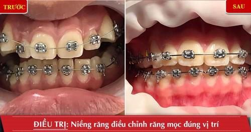 trước và sau khi niềng răng