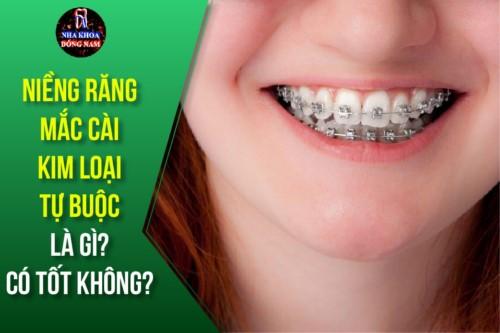 Niềng răng mắc cài kim loại tự buộc là gì? Có tốt không?