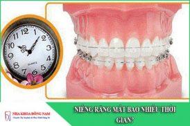 niềng răng mất bao nhiêu thời gian