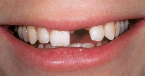 niềng răng mọc lệch và những điều cần biết 2