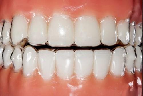 Niềng răng tháo lắp có nên sử dụng không 2