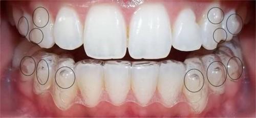 Niềng răng tháo lắp có nên sử dụng không 3