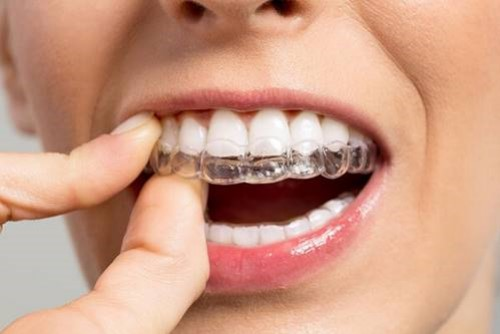 Niềng răng tháo lắp có nên sử dụng không 4