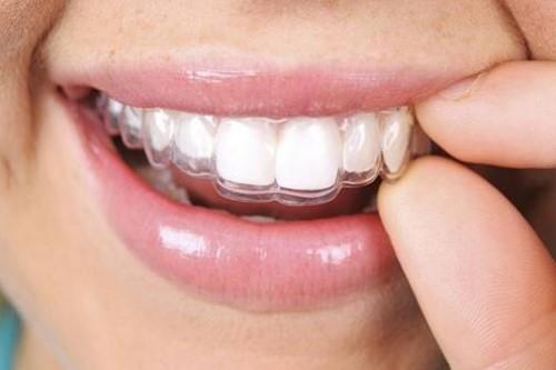 Niềng răng tháo lắp có nên sử dụng không 6