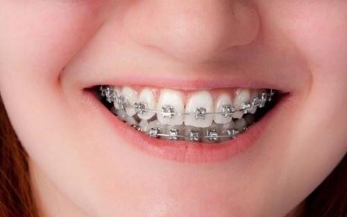 Niềng răng tháo lắp có nên sử dụng không 7