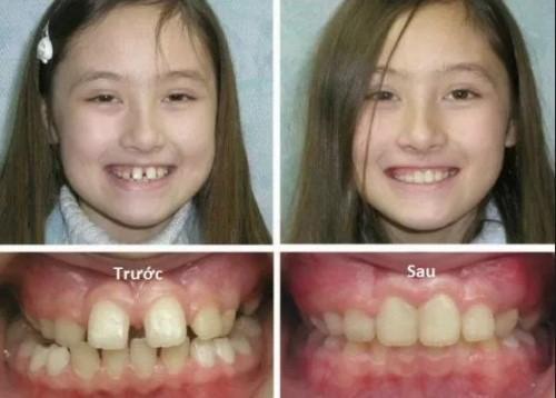niềng răng thưa được không 1