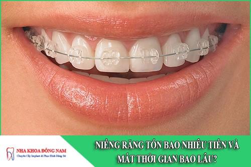 niềng răng tốn bao nhiêu tiền và mất thời gian bao lâu