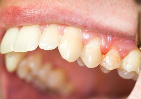 phụ nữ mang thai có nhổ răng được không 2