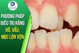 phương pháp điều trị răng hô, vẩu, mọc lộn xộn