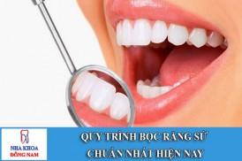 quy trình bọc răng sứ chuẩn nhất hiện nay