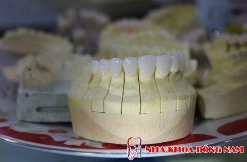 quy trình bọc răng sứ chuẩn nhất hiện nay 6