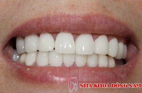 quy trình bọc răng sứ chuẩn nhất hiện nay 7