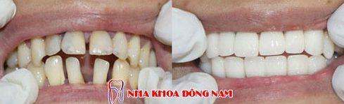 quy trình bọc răng sứ chuẩn nhất hiện nay 8