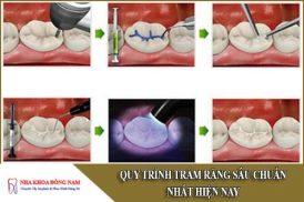 quy trình trám răng sâu chuẩn nhất hiện nay