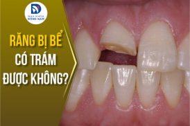 răng bị bể có trám được không