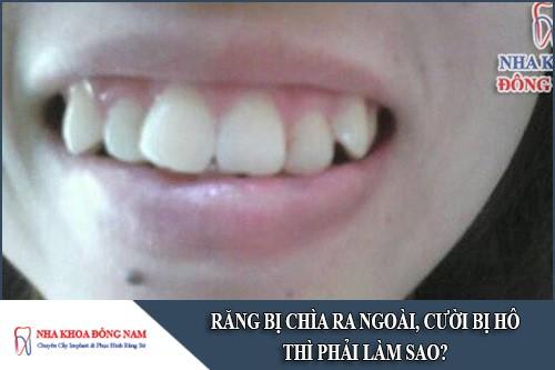 răng bị chìa ra ngoài, cười bị hô thì phải làm sao