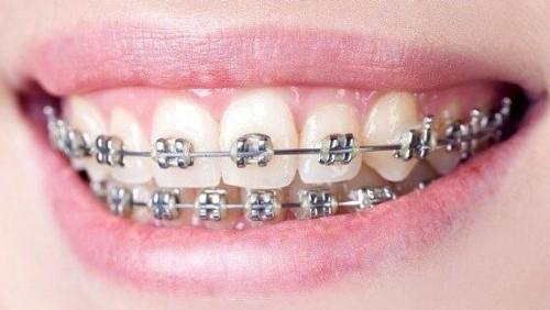 răng bị chìa ra ngoài, cười bị hô thì phải làm sao 2