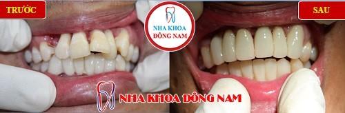 bọc răng sứ cho răng chìa