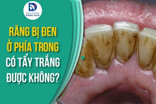 Răng bị đen ở phía trong có tẩy trắng được không