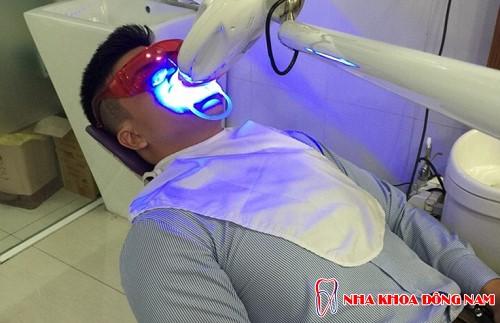 tẩy trắng răng bằng đèn zoom