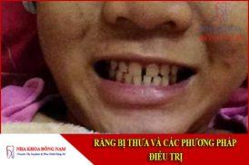 răng bị thưa và các phương pháp điều trị