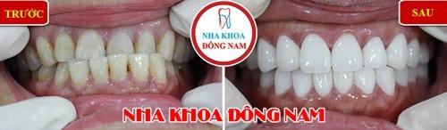 bọc sứ cho hàm răng mọc lệch lạc, không thẳng hàng