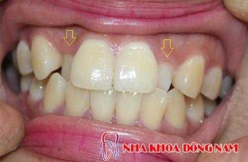 răng mọc lệch bị thụt vào trong
