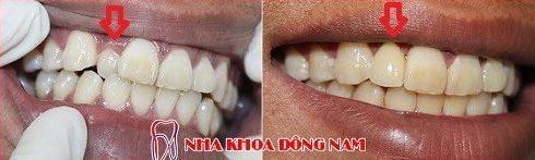 bọc sứ cho răng bị thụt vào trong