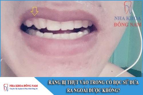 răng bị thụt vào trong có bọc sứ đưa ra ngoài được không