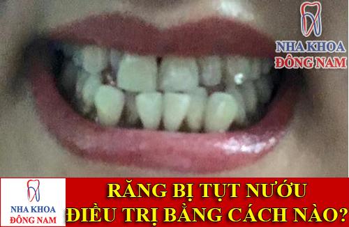 răng bị tụt nướu thì điều trị bằng cách nào -1