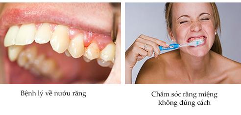 răng bị tụt nướu thì điều trị bằng cách nào -2
