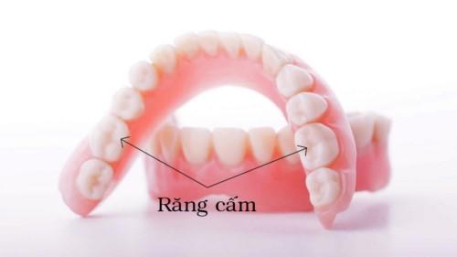 răng cấm bị sâu nên nhổ hay giữ lại 1