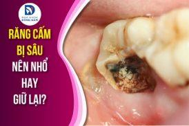 răng cấm bị sâu nên nhổ hay giữ lại