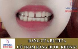 răng cửa bị thưa có trám răng được không -1