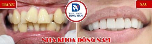 bọc răng sứ cho răng mọc lộn xộn