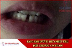 răng hàm dưới bị thưa phải điều trị bằng cách nào