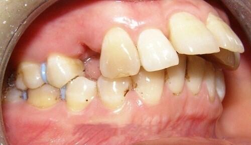 răng hô nên niềng răng hay bọc sứ