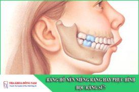 răng hô nên niềng răng hay phục hình bọc răng sứ