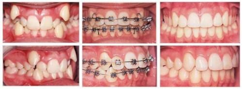 răng hô nên niềng răng hay phục hình bọc răng sứ 3