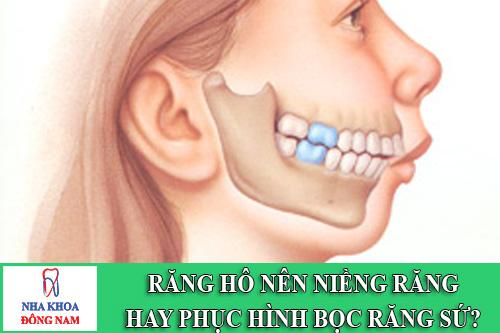 rang ho