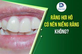 răng hơi hô có nên niềng không