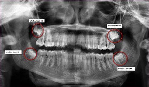 răng khôn mọc lệch thì phải làm sao 1