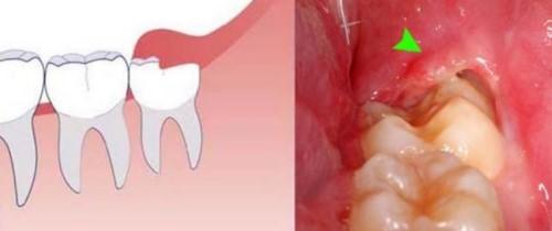 răng khôn mọc lệch thì phải làm sao 3