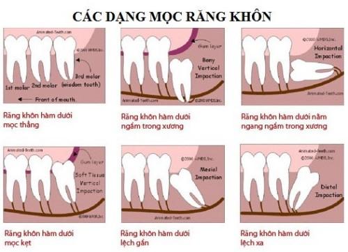 răng khôn mọc lệch thì phải làm sao 6
